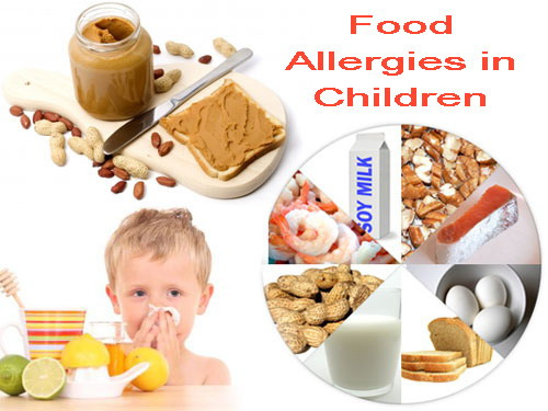 Food Allergies In Children – How To Prevent Them?